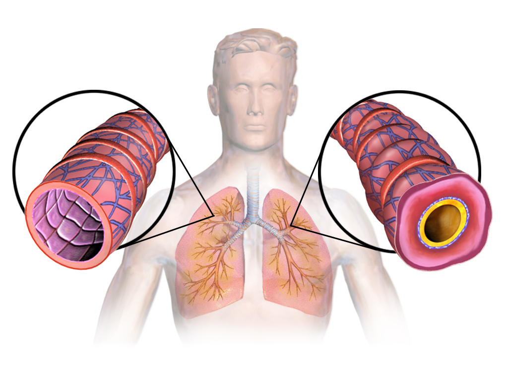 https://www.cienciapr.org/sites/cienciapr.org/files/asthma_lungs