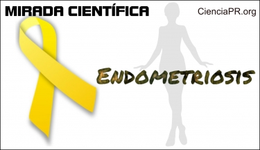 Mirada Cientifica Podcast - Endometriosis